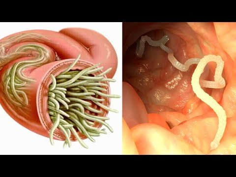7-herbs-that-can-kill-internal-parasites-naturally