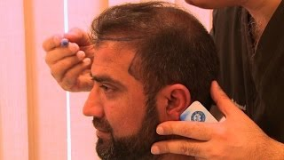 Hair transplants: Pakistan
