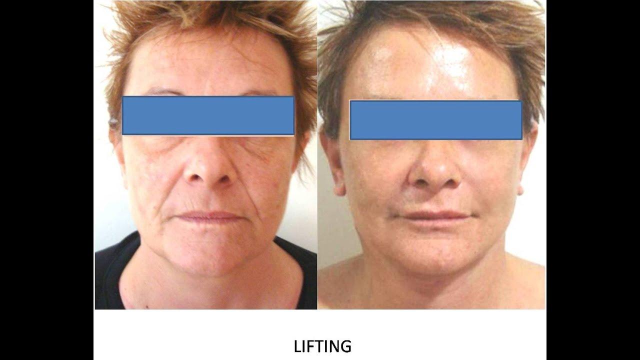 Chirurgie au laser du visage