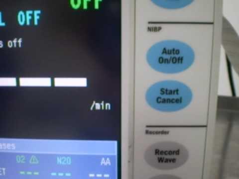 Refurbished Datex-Ohmeda Anesthesia Monitor
