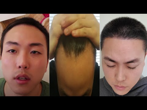 what-i-really-think-about-my-6-month-post-op-hair-transplant!