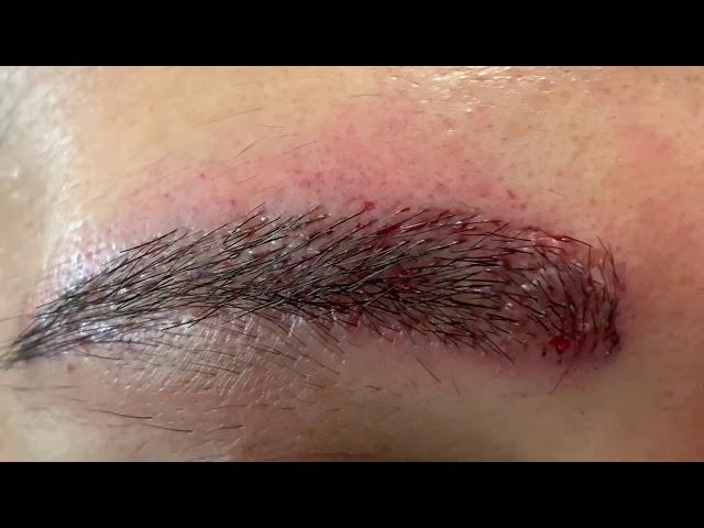 Dallas Ethnic Hispanic Eyebrow Hair Transplant Closeup Right After