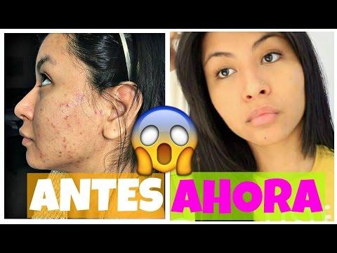 como quitar marcas de acne en una semana