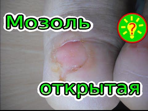 Как лечить мозоль на ноге от обуви