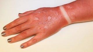 FX MAKEUP SERIES: First Degree Burn (Sunburn)