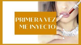 Gambar cover RELLENO DE OJERAS, LABIOS  Y BOTOX /MI EXPERIENCIA con fillers /Jeka  Channel
