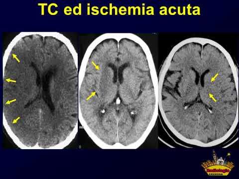 03 TC. Dynamic volume CT stroke imaging. Mario Crispino