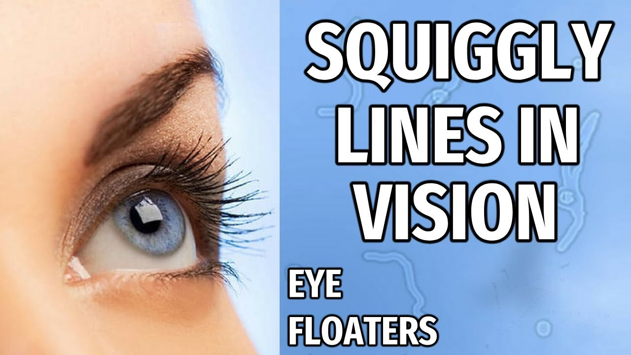 what causes squiggles in your eyes