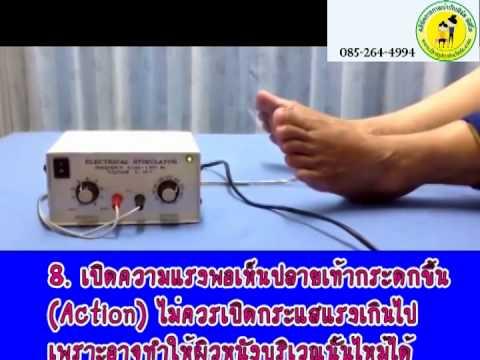 ตอนที่31: เครื่องกระตุ้นกล้ามเนื้อ Electrical Stimulator