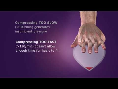Conventional CPR Overview