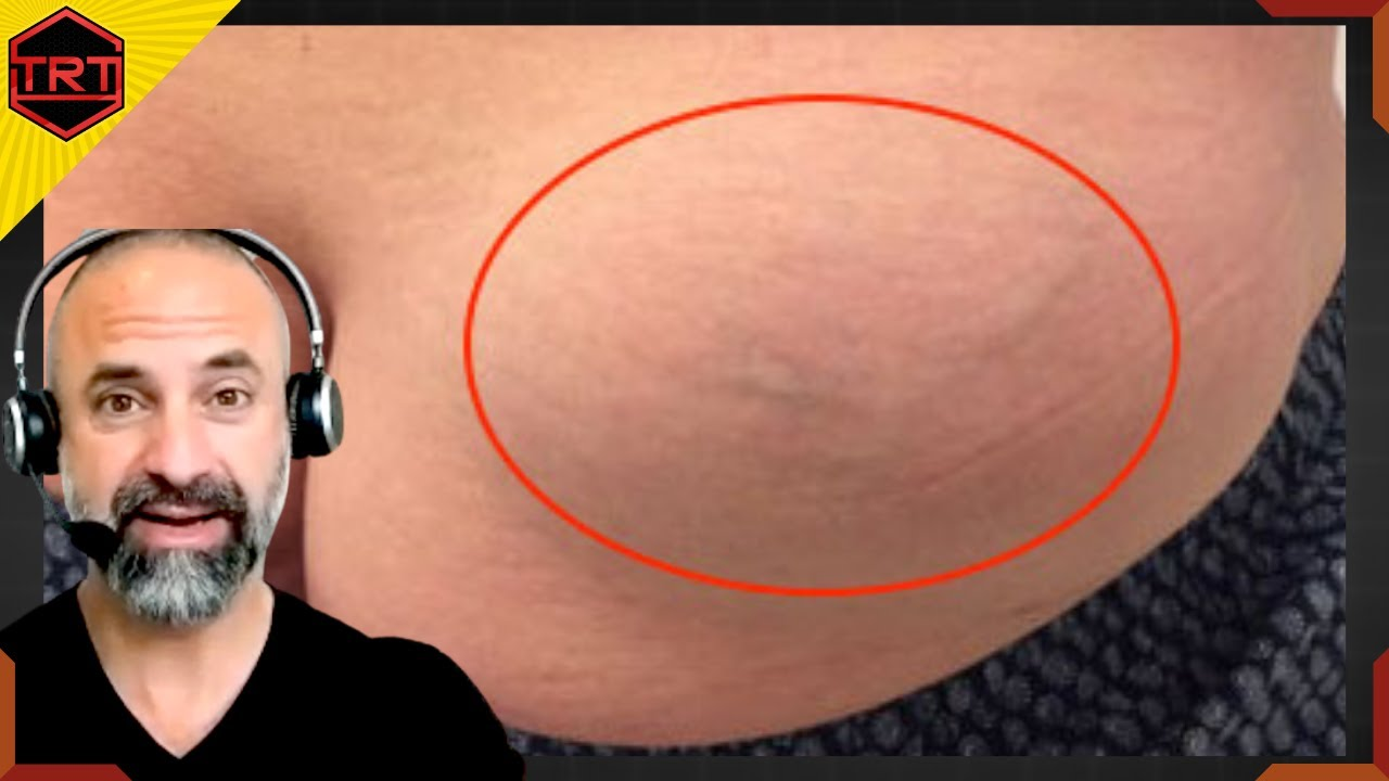 lump from injection of steroids
