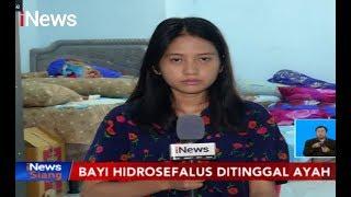 Penanganan Hidrosefalus dr  Ananda Haris, SP BS.