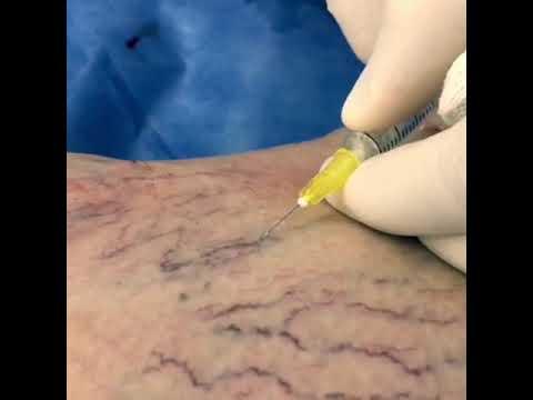 Склеротерапия - лечение сосудистых звездочек и мелких варикозно ...