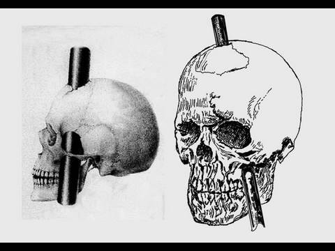 Stabbed in the Brain: Phineas Gage