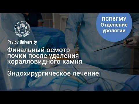 Осмотр почки после удаления коралловидного камня | Гаджиев Нариман Казиханович, уролог-хирург