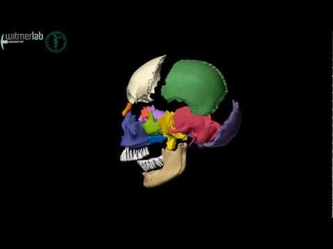 Human skull - exploded skull with bones labelled, based on CT scanning