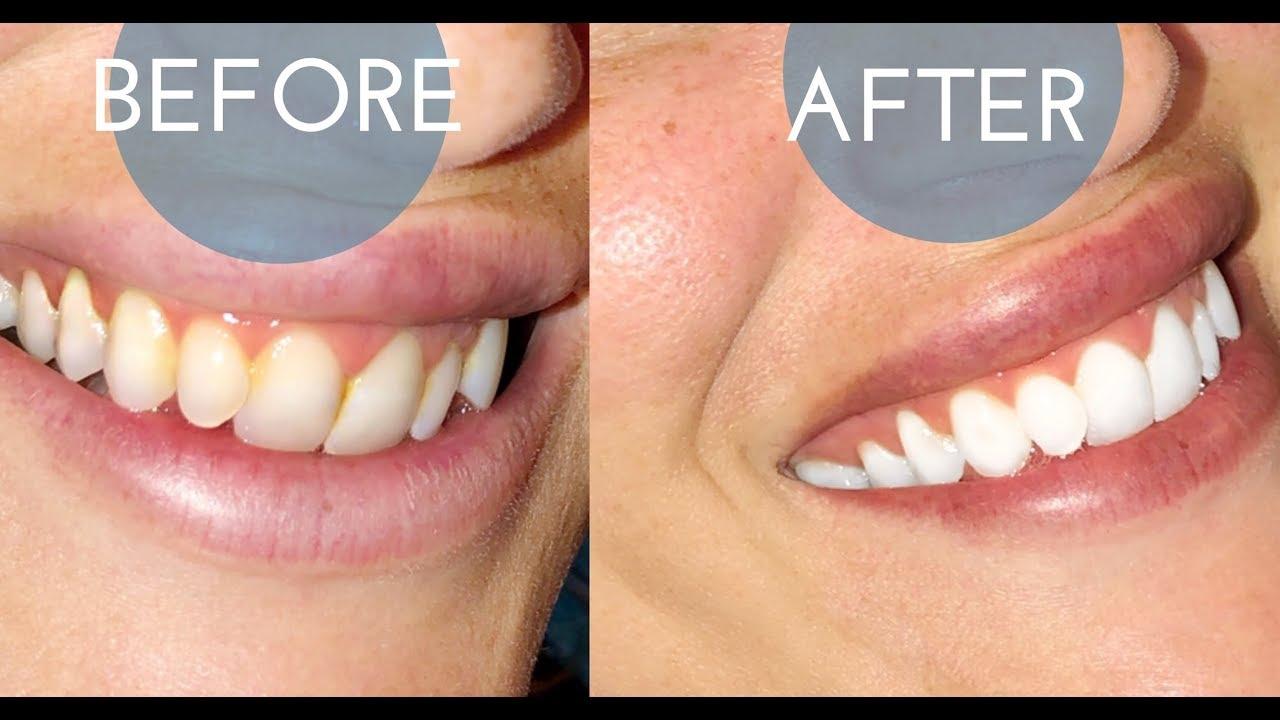 Ismile California Teeth Whitening Kit For Sensitive Teeth Honest