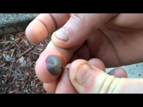 Popping a blood blister: Warning GROSS