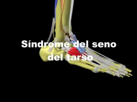 Síndrome del seno del Tarso - YouTube