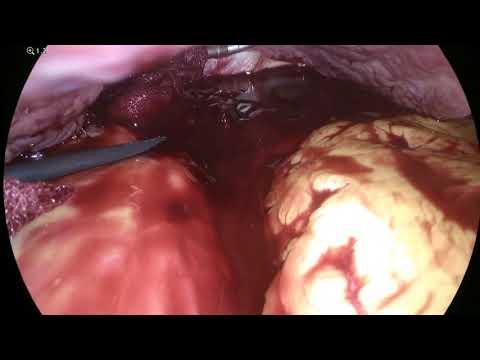 "management-of-massive-bleeding-during-laparoscopy---dr-.-madi-hussam-ד""ר-חוסאם-מאדי"