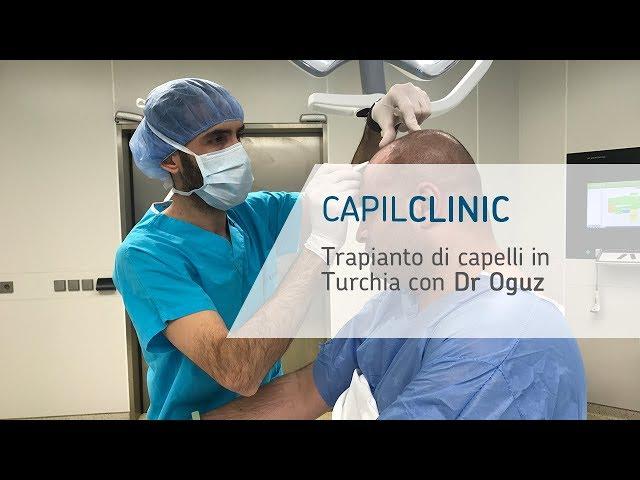 Testimonianza di Francesco dopo aver realizzato il trapianto di capelli - CapilClinic