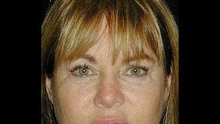Jeana Keough's surgeon shares before and after images