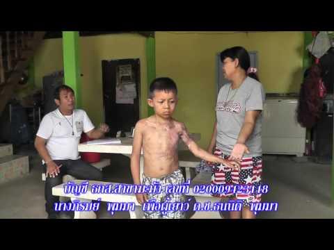 พิจิตร วอนช่วยเหลือเด็ก 7 ขวบตกกะทะทอดปลาท่องโก๋