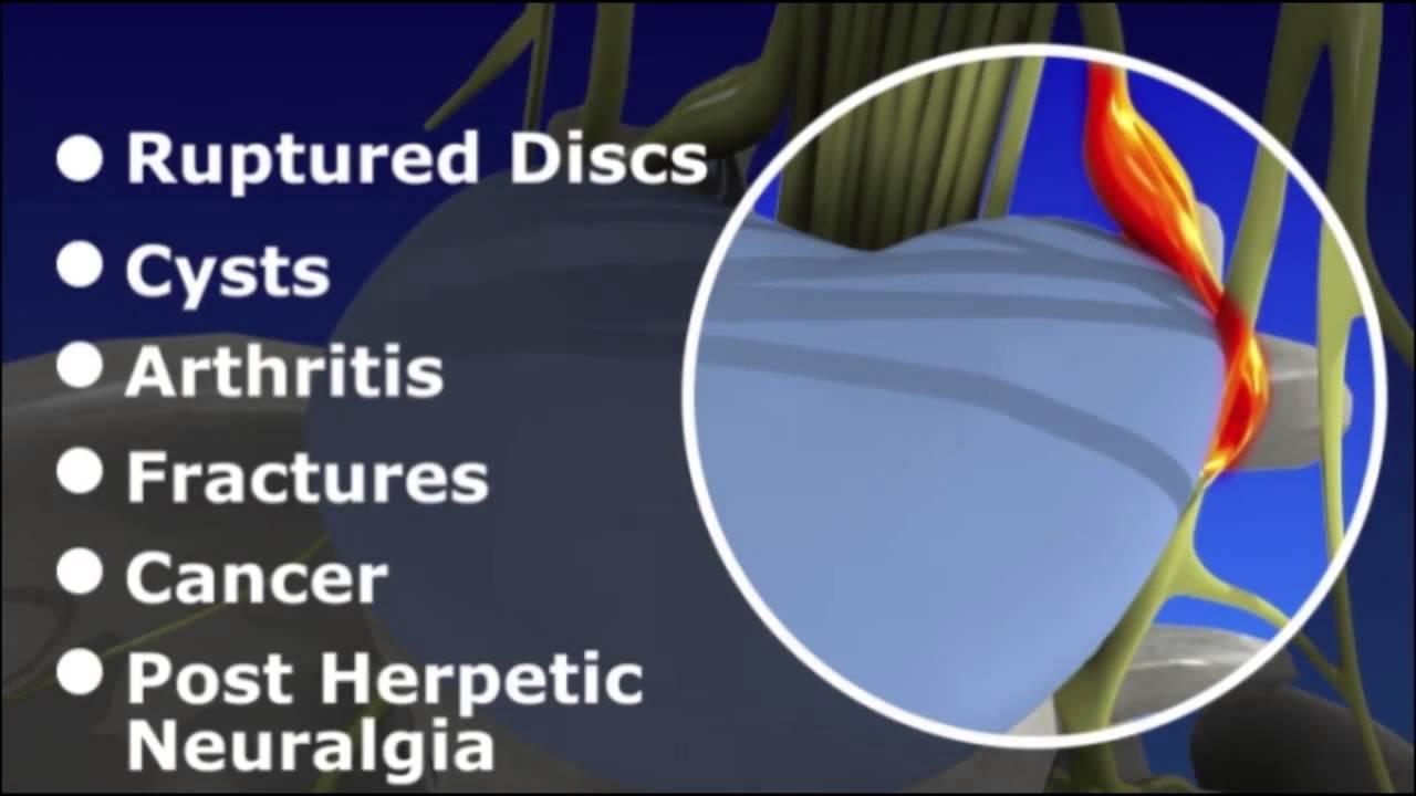 Epidural Injections - Low Back (Lumbar)