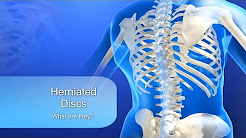 Herniated Disc- Lower Back Pain, Sciatica, and Neck Pain