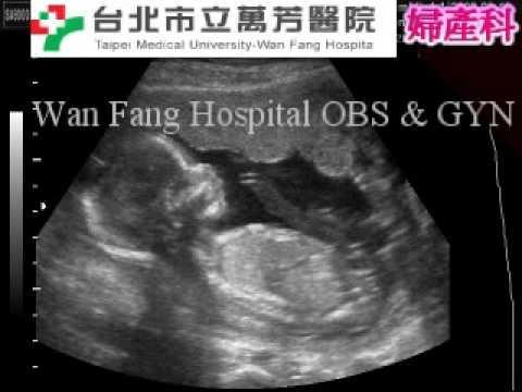 懷孕17週 - YouTube