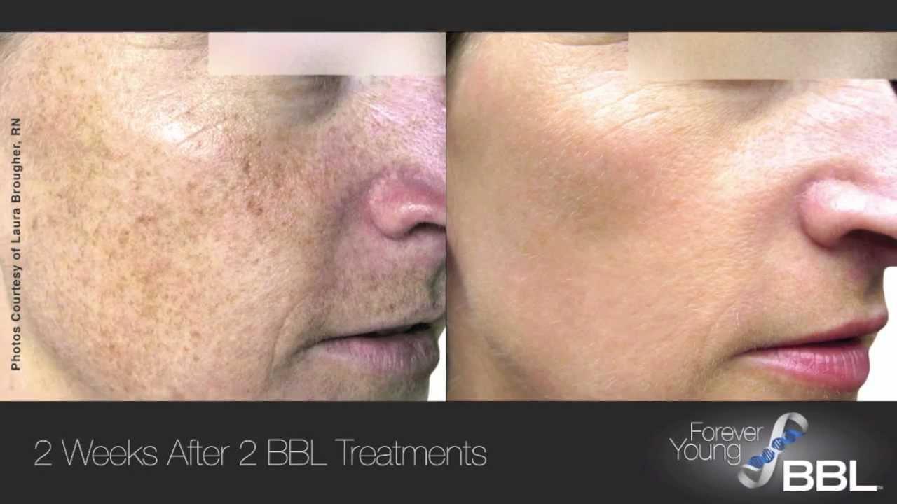 Laser Skin Rejuvenation Treatments | Pioneer Valley Plastic