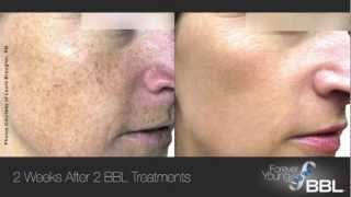Groundbreaking study from stanford university about forever young bbl *bbl is fda cleared for, but not limited to, benign pigmented lesions, cutaneous lesion...