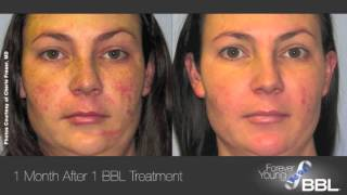 Bbl forever young - skin rejuvenation