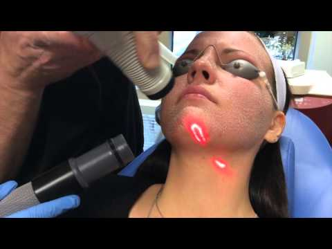 Recovery After CO2 Laser Facial