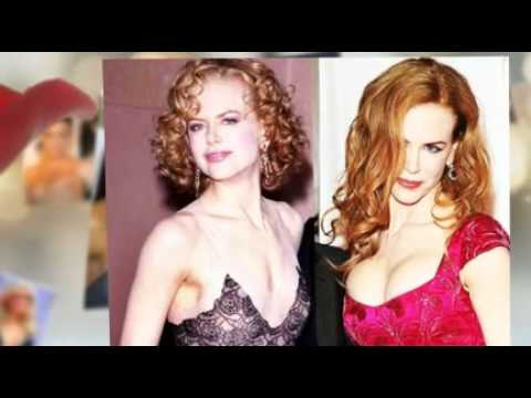 6 Celebrity  Breast Implants Before  And After