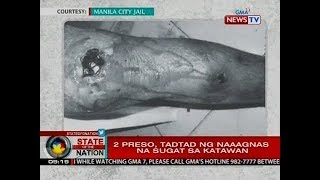 SONA: Dating preso ng Manila City Jail, nakitaan ng flesh-eating disease at kalauna'y namatay