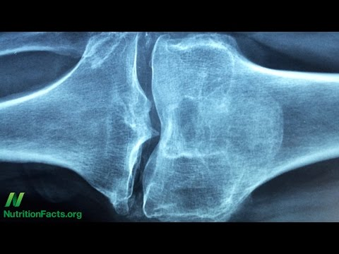 Sesame Seeds for Knee Osteoarthritis