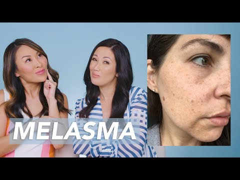 Dark Spots and Melasma Removal Skincare Routine for New Mom Kt!