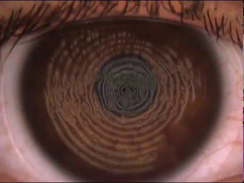 schlechte Benetzung weicher Kontaktlinsen