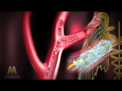 3D Medical Animation (HD) - Stroke Management