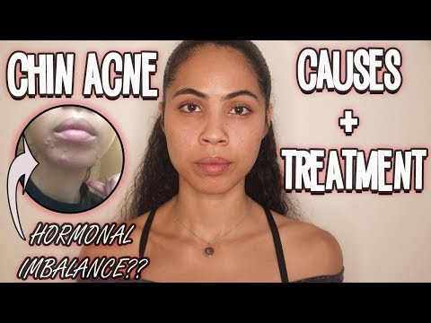 hqdefault - Acne Breakouts Only On Chin