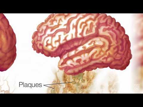 Alzheimer's disease drug shows early promise Mp3
