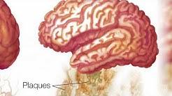 Alzheimer's disease drug shows early promise