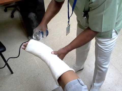 C mo sacar un yeso de la pierna youtube - Como poner molduras de escayola ...
