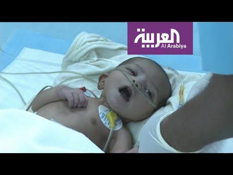 مركز الملك سلمان أجرى عمليات جراحية لـ 20 طفلا يمنيا من مرضى القلب  - نشر قبل 7 ساعة