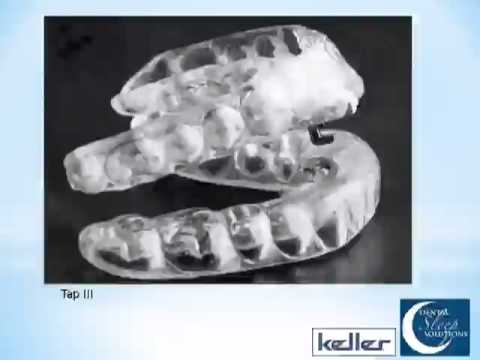 Dental Sleep Solutions Webinar #2