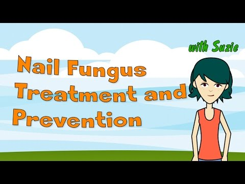 Nail Fungus: Treatment and Prevention