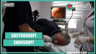 GASTROSKOPİ - ENDOSKOPİ (Gastroskopi Nasıl Yapılır ?)