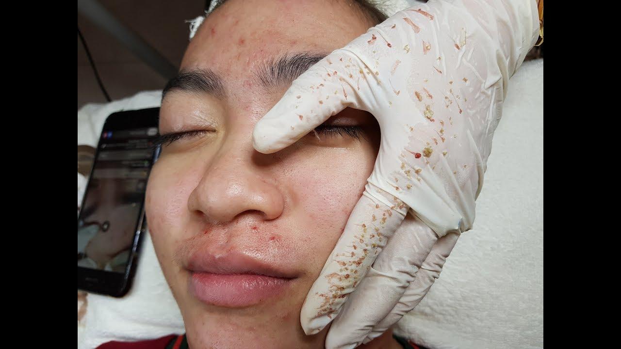 Cách điều trị mụn ẩn, mụn viêm hiệu quả nhất TPHCM – Tại Hiền Vân Spa