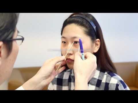 Id's new eyelids surgery method - Adjustable Line Double Eyelids Surgery!